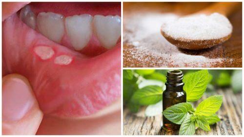 التقرحات الفموية – 7 علاجات طبيعية لمكافحة تقرحات الفم