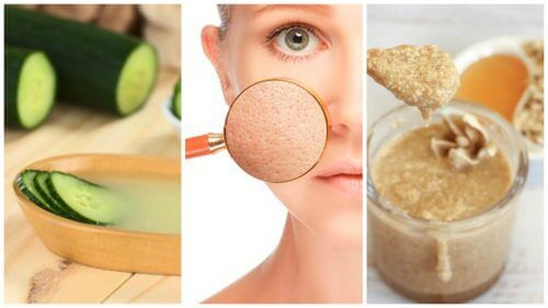 تضييق المسامات – ضيّق مسامات بشرتك مع هذه العلاجات الطبيعية الخمسة
