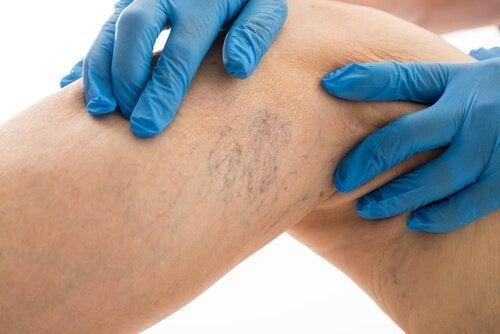 علاج الدوالي الوريدية – 8 قواعد يجب اتباعها لمكافحة الدوالي