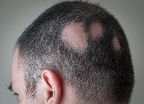 مكافحة الثعلبة - حلول طبيعية تساعدك على مكافحة فقدان الشعر بفعالية