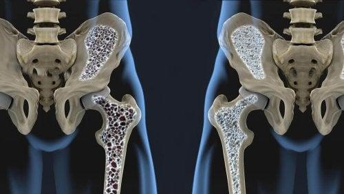 مكافحة تخلخل العظم – 6 نصائح غذائية تساعدك على تجنب هشاشة العظام