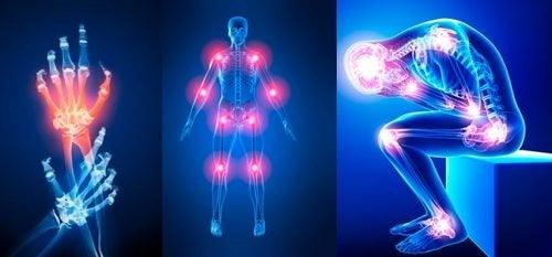 الآلام المفصلية – 7 أسباب تفسر إصابتك بآلام المفاصل المزعجة