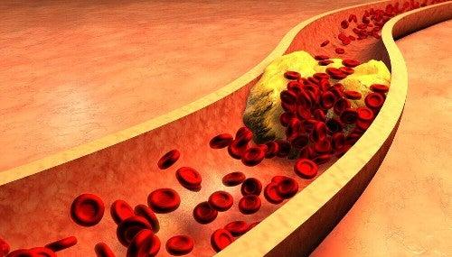 تنظيف الشرايين - شراب بذور الكناري والقرفة للحفاظ على صحة الشرايين