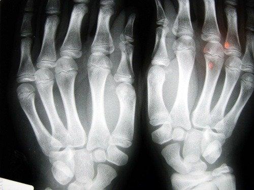 صورة أشعة أكس لليدين
