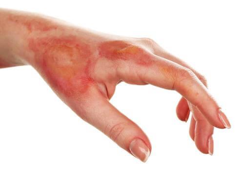 علاج الحروق – علاجات منزلية طبيعية تساعدك على علاج الحروق