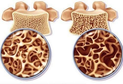 هشاشة العظام – كيفية تحضير علاج غني بالكالسيوم للوقاية من هشاشة العظام