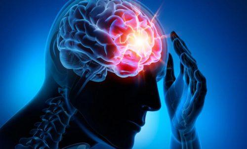 الأمراض الدماغية الوعائية – أنواع السكتات الدماغية الأكثر شيوعًا