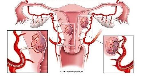الأورام الليفية - 7 علامات تحذيرية لا يجب تجاهلها تشير إلى إصابتك بالحالة