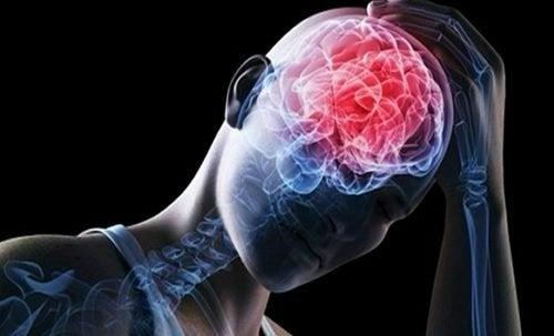 الانصمام الدماغي