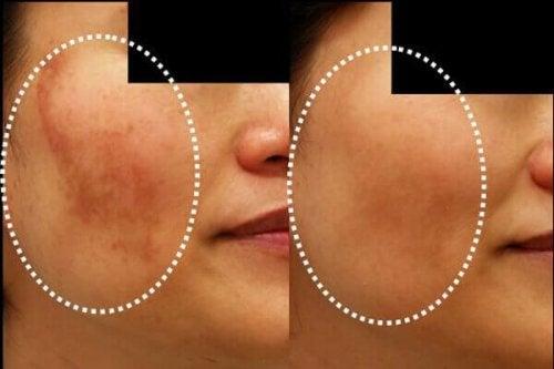 تبدل لون الجلد – 5 أقنعة طبيعية تساعدك على مكافحة الحالة