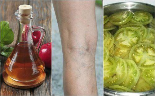 توسع الأوردة (الدوالي) - كافحيها بالاستعانة بعلاج الخل والطماطم الخضراء اليوم!