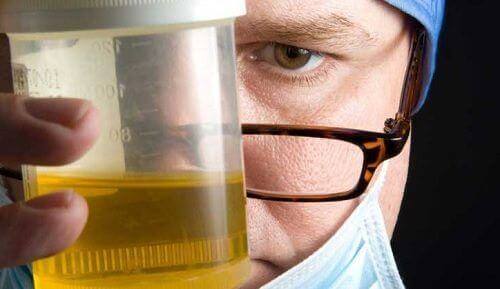 رائحة البول الكريهة – 8 أسباب تفسر ظهور رائحة البول الكريهة