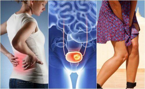 سرطان المثانة – اكتشف 7 علامات منذرة يجب عليك الانتباه لها