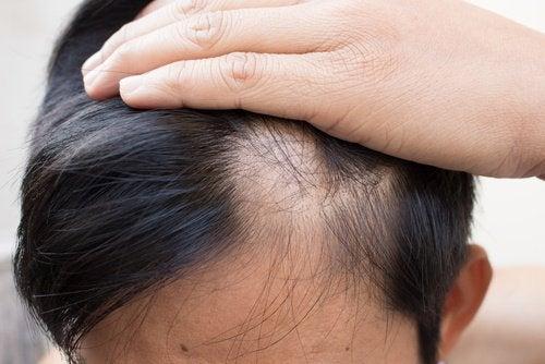 حالة الثعلبة - 6 علاجات طبيعية قد تساعدك على مكافحة المشكلة