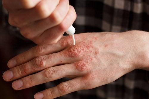 5 علاجات عشبية موضعية لمرض الصدفية