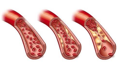 حمية أسبوعية تساعدك على تخفيض مستوى الدهون الثلاثية