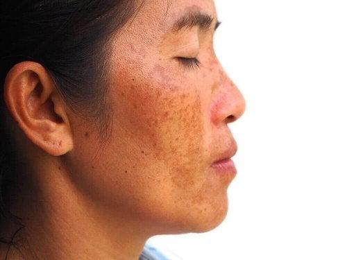 حالة الكلف – اكتشف كيفية تخفيف بقع البشرة الداكنة بعلاج منزلي فعال