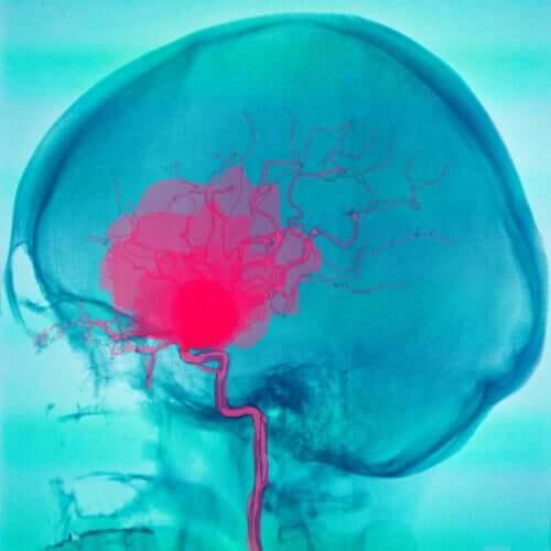 ماذا يجب أن تعرف عن حالة الشلل الدماغي؟