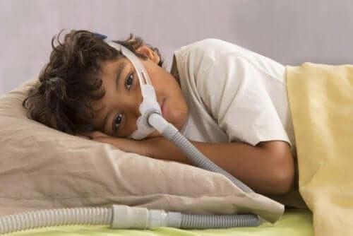 انقطاع النفس الانسدادي النومي في حالة الأطفال