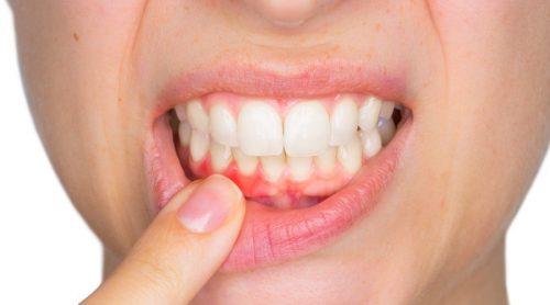 خراجات الأسنان – اكتشف كيفية علاجها معنا اليوم
