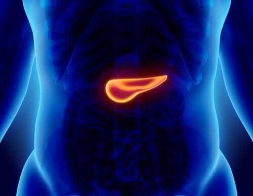 التهاب حاد في البنكرياس