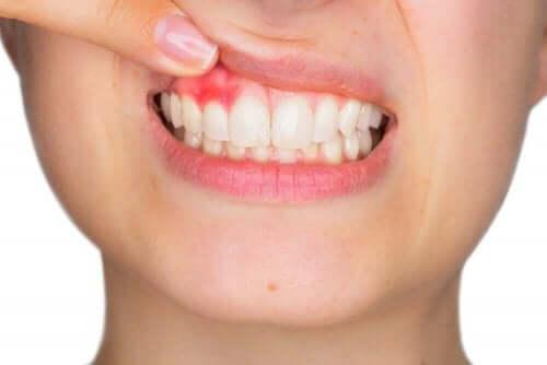 غسول الفم وحالات اللثة