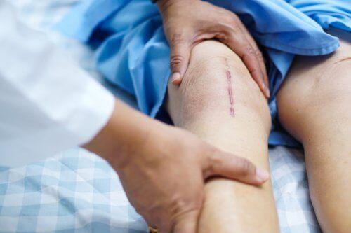 استبدال مفصل الركبة والتعافي بعد الجراحة