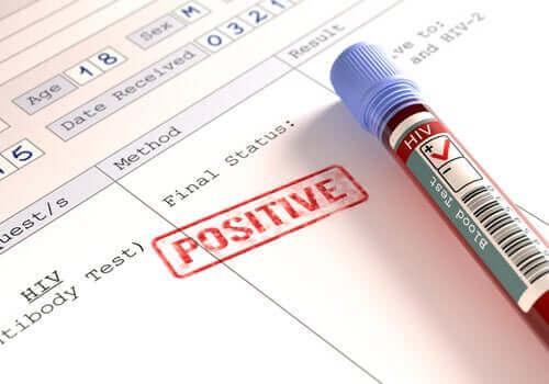 فيروس نقص المناعة البشري - هل المصابون أكثر عرضة لمخاطر الكورونا؟