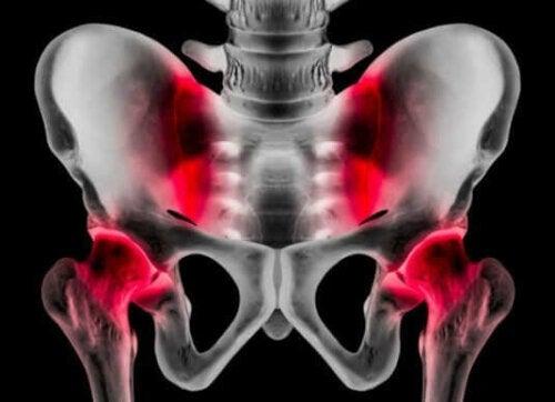 الفتق الرياضي - الأعراض والمسببات، والعلاجات