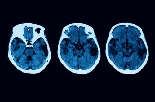 ضمور القشرية الخلفية - التشخيص والعلاج