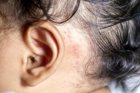 علاج مرض الصدفية في حالة الأطفال