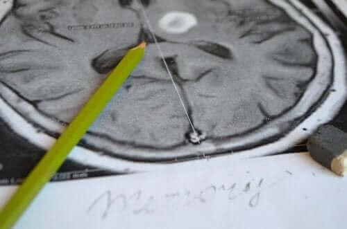 فقد الذاكرة - الأعراض ووسائل الوقاية