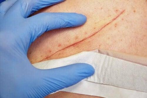 التقنيات الأساسية لإغلاق الجروح