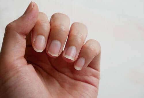 الأظافر الهشة – 4 علاجات طبيعية لعلاج المشكلة