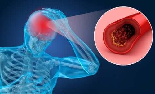 السكتة الدماغية – اكتشف معنا عوامل الخطر والأعراض