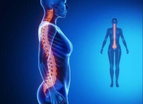 تشخيص وعلاج التهاب المفصل التنكسي في العمود الفقري