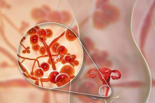 المفطورة التناسلية - المسببات، الأعراض والعلاج