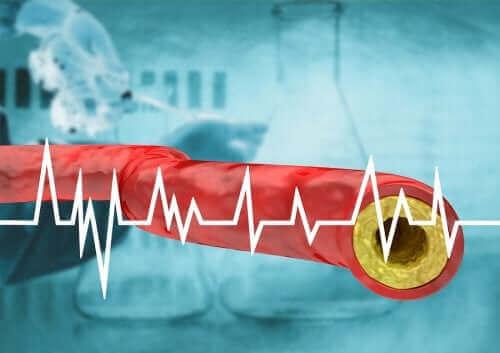 مستوى الكوليسترول المرتفع – كافحه من خلال النظام الغذائي الصحي