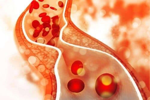 مستوى الكوليسترول في الدم