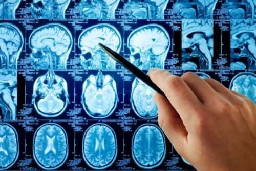 علاج النقيلة الدماغية