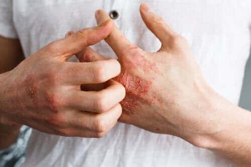 التهاب الجلد التأتبي – كل ما تحتاج إلى معرفته عن الإكزيما التأتبية