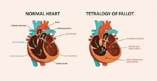 المرض القلبي الخلقي