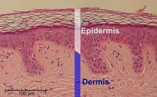 حمض الساليسيليك - طبقات الجلد