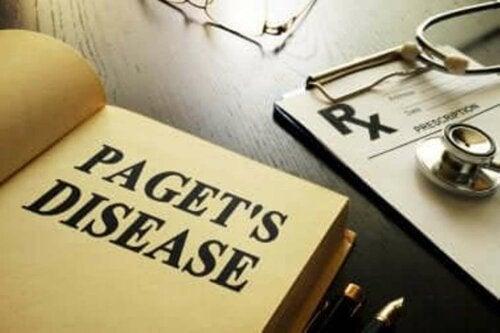 التهاب العظم المشوه - كل ما تحتاج إلى معرفته عن المرض