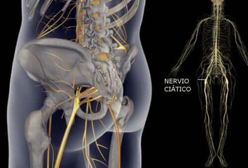 ألم العصب الوركي – تمارين بسيطة تساعدك على تخفيفه