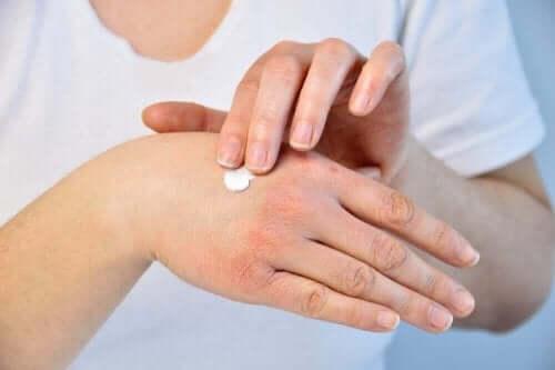 المسببات المرتبطة بحالة جفاف وتشقق اليدين