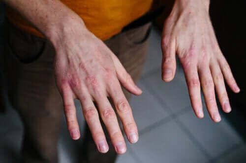 جفاف وتشقق اليدين – المسببات، طرق الوقاية وبعض العلاجات