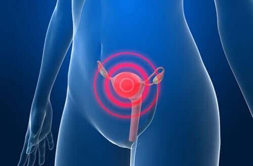 سرطان بطانة الرحم – كيفية علاج المرض بعد التشخيص