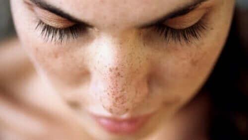 سيدة لديها نمش على أنفها - الوحمات والشامات