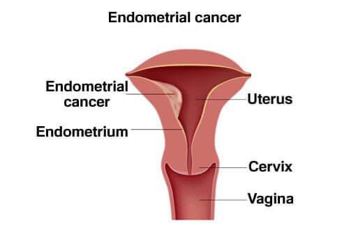 سرطان بطانة الرحم